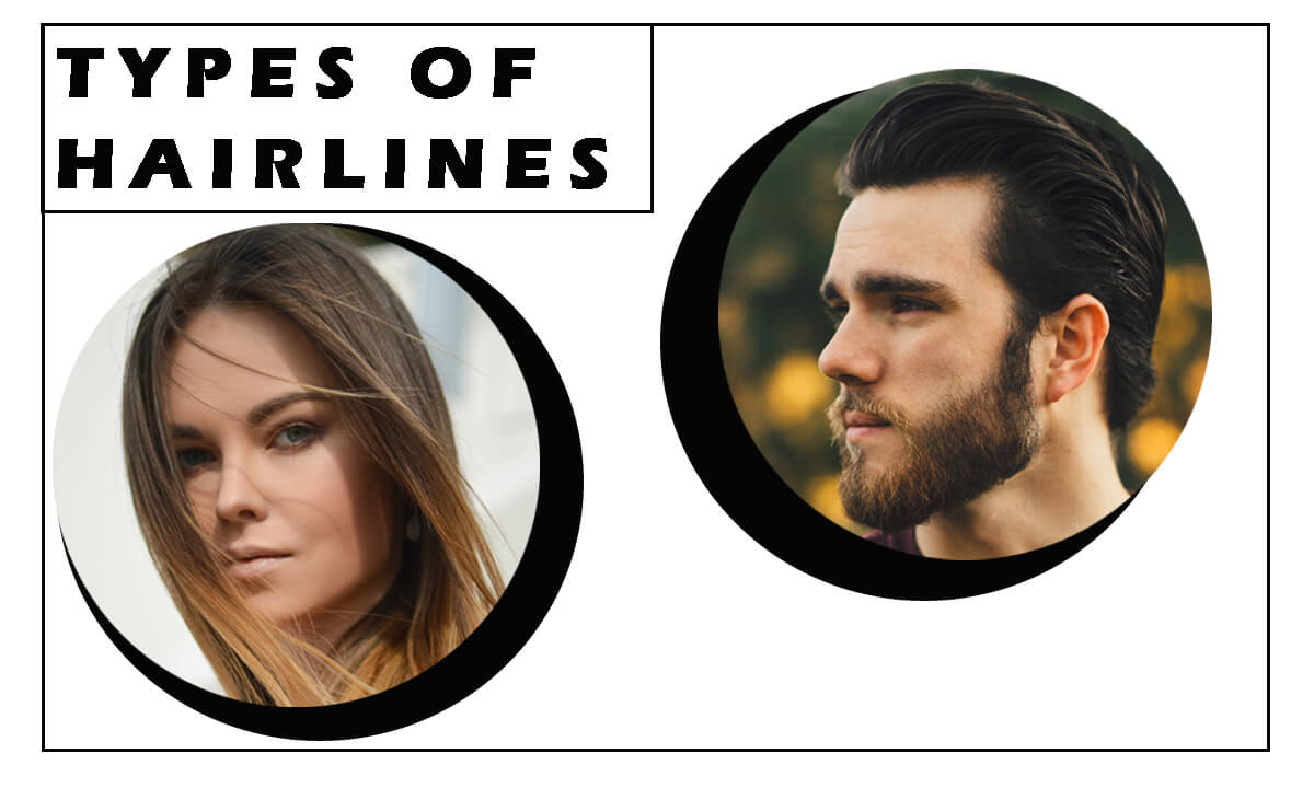 Types of hairlines