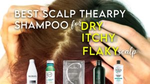 Best Shampoo for Itchy Dry Flaky Scalp